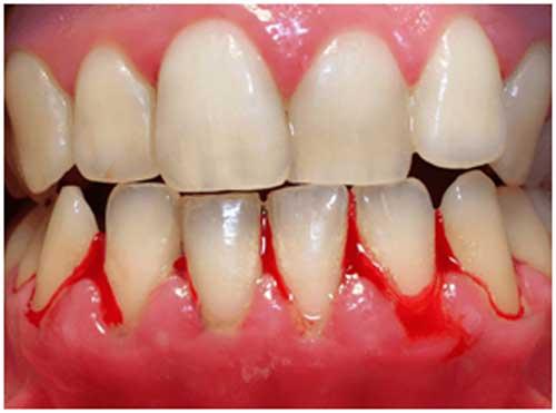 Studio Dentistico Dott. Paolo Papa a Napoli: gengivite