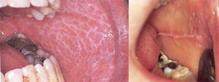 Studio Dentistico dott.ri Paolo e Cristina Papa | Medici Chirurghi Odontoiatri a Napoli: esempi di potenziali lesioni precancerose del cavo orale
