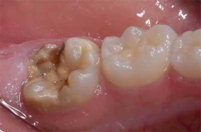 Studio Dentistico dott.ri Paolo e Cristina Papa | Medici Chirurghi Odontoiatri a Napoli:: Molar Incisor Hypomineralization (MIH)