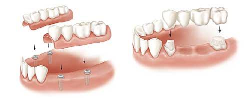 Studio Dentistico Dott. Paolo Papa a Napoli: protesi fissa o mobile