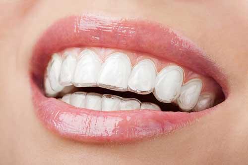 Studio Dentistico Dott. Paolo Papa a Napoli: ortodonzia invisibile