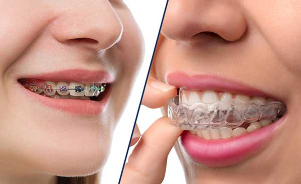 Studio Dentistico Dott. Paolo Papa a Napoli: ortodonzia tradizionale e invisibile